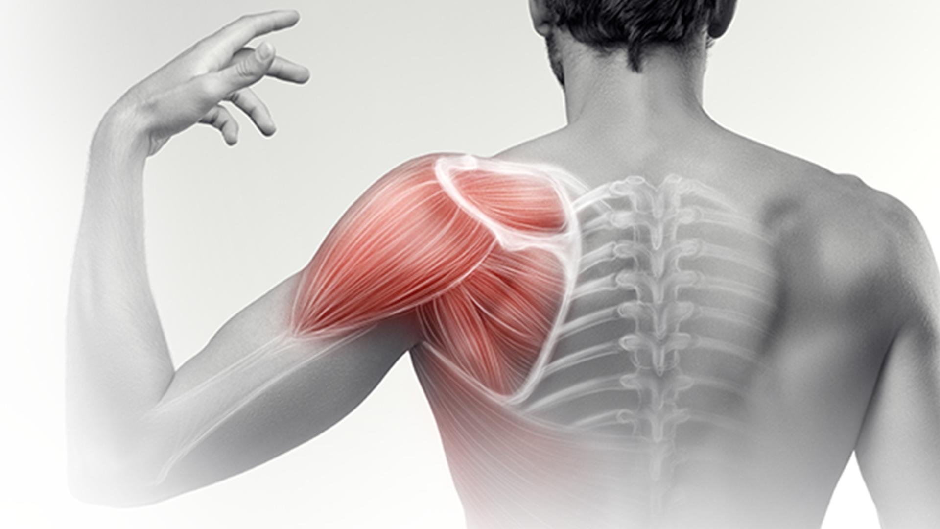 shoulder-pain-final